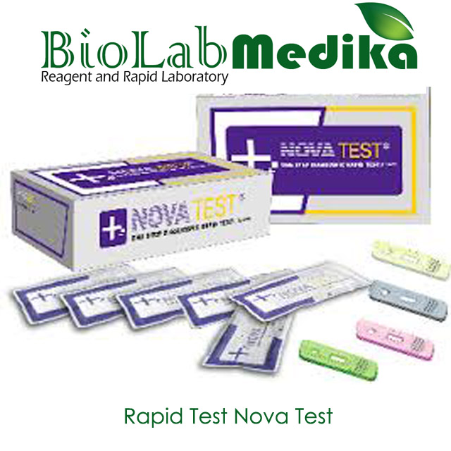 Rapid Test Nova Test